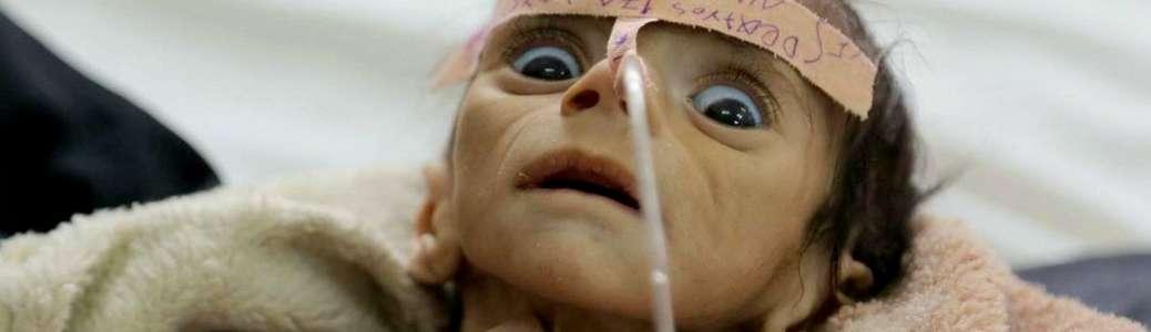 Bambino, Yemen, fame